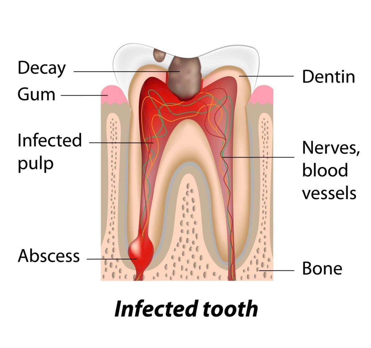 infected-teeth