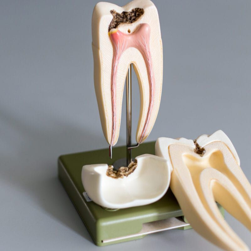 A model of a tooth with decay